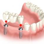 Dlaczego implanty budzą pewne obawy